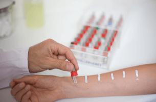 Аллергологические исследования