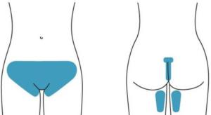 Отбеливание кожи вульвы, половых губ, ануса