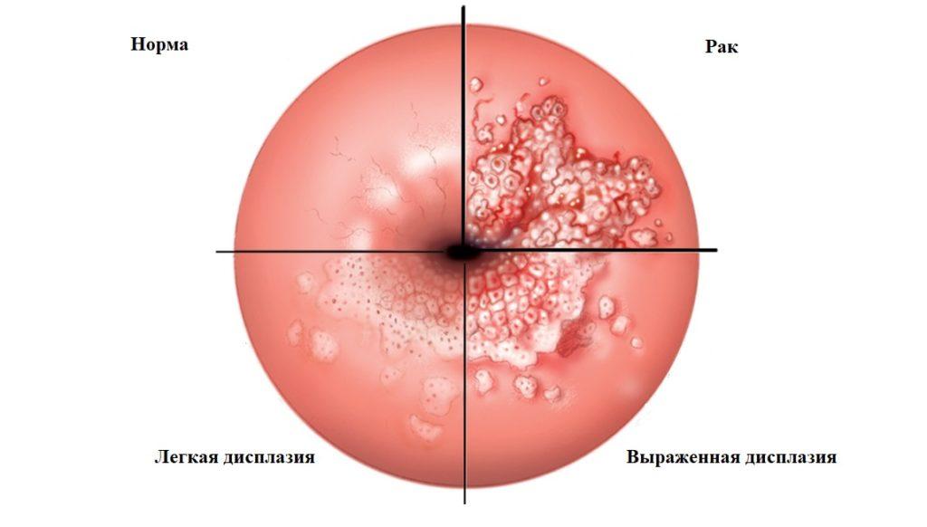 Дисплазия шейки матки: что нужно знать?